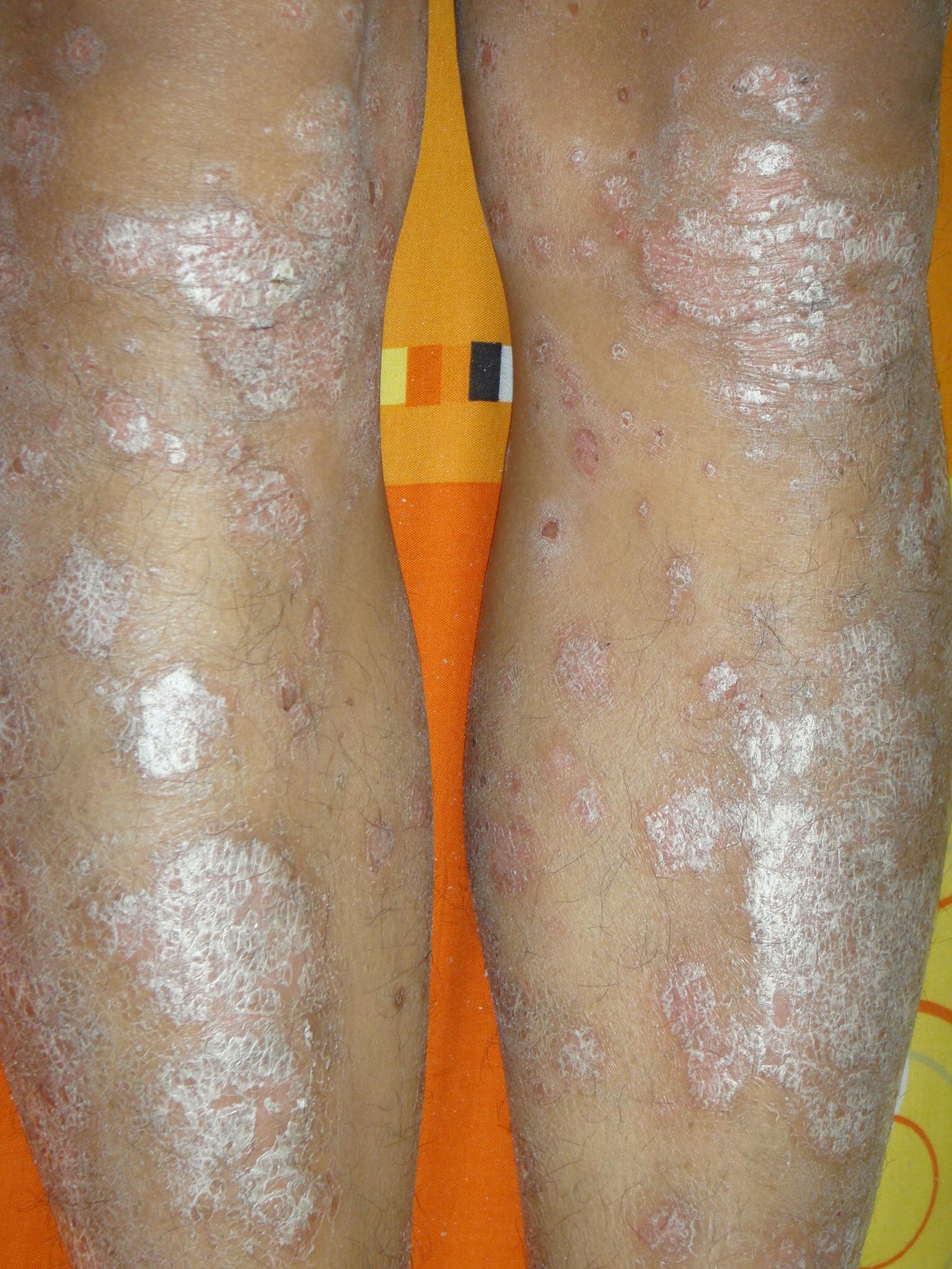 腿部银屑病有哪些症状