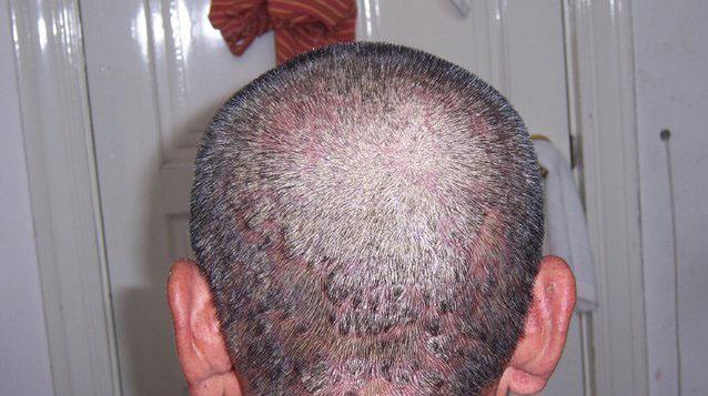头部银屑病的危害有哪些